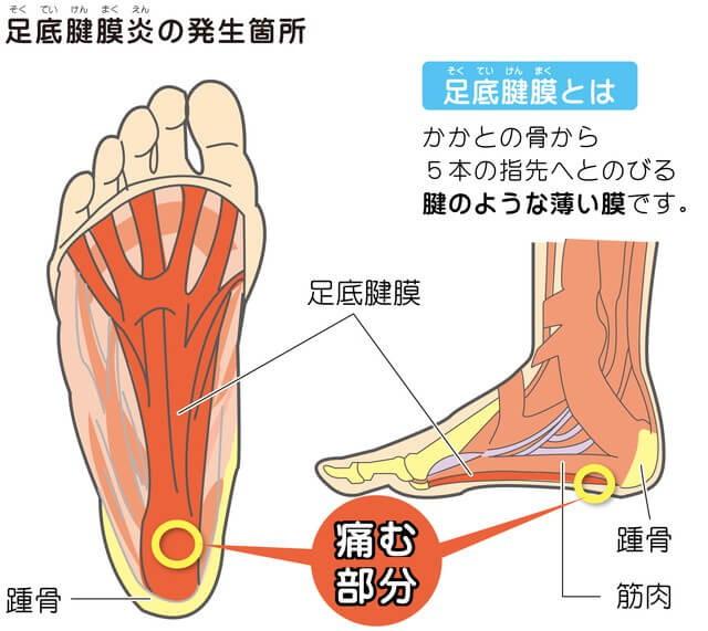 足底筋膜炎の痛みの部位