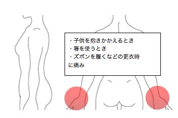 腱鞘炎の症状