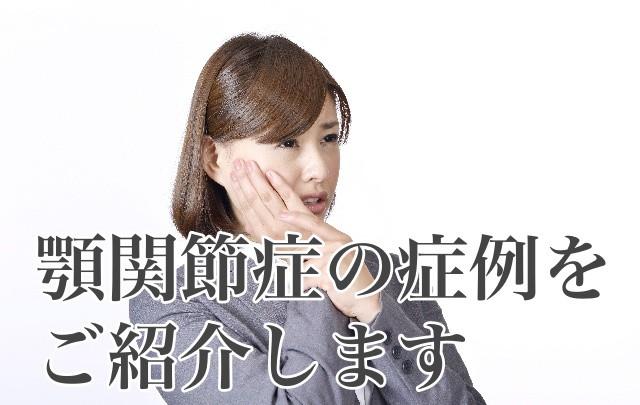 顎関節症の症例
